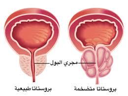 افضل طبيب لعلاج البروستات في الأردن : يشرح أعراض تضخم غدة البروستات