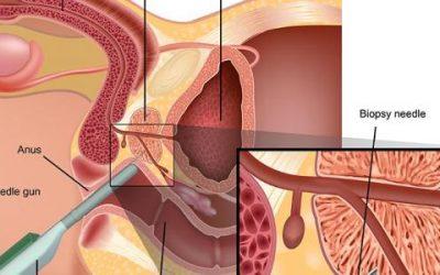 افضل طبيب لعلاج البروستات في الأردن يتكلم عن استئصال البروستات بالمنظار