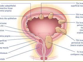 افضل طبيب لعلاج حصى الكلى في الأردن يتكلم عن سرطان المثانة