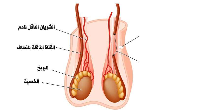 افضل طبيب لعلاج دوالي الخصية في الأردن يشرح أسباب ألم الخصية
