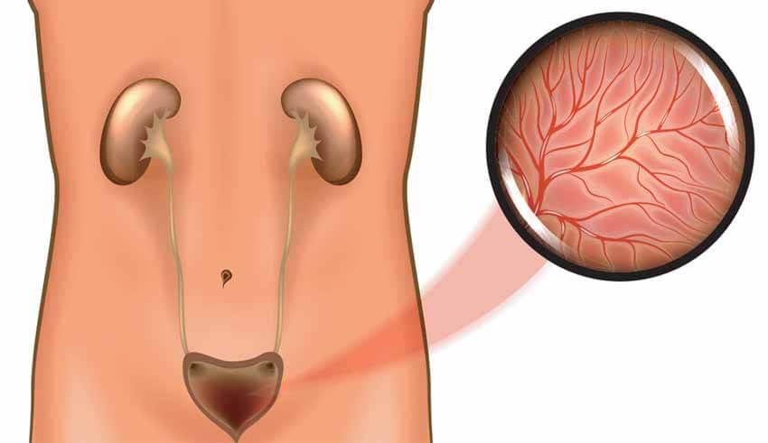 افضل طبيب لعلاج حصى الكلى في الأردن والتهاب المثانة الخلالي