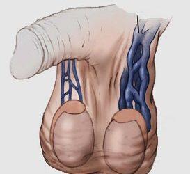 عملية دوالي الخصية بالميكروسكوب الجراحي